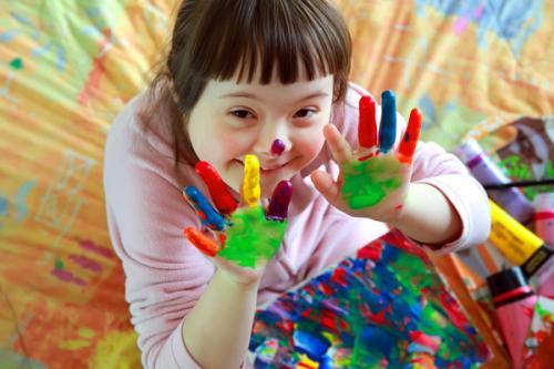 enfant porteur de la trisomie 21